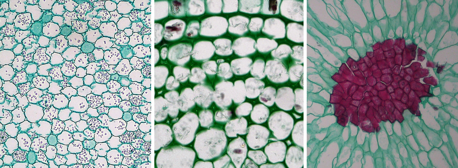 3-Panel photographic figure. Panel 1: Parenchyma cells from a root in cross section. Panel 2: Collenchyma cells from a stem in cross section. Panel 2: Stone cells, a type of sclerenchyma, from the flesh of a pear.